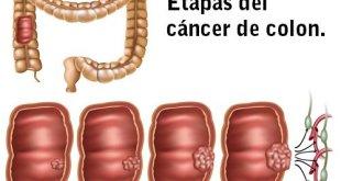 Test Septina9: la detección precoz del cáncer de colon