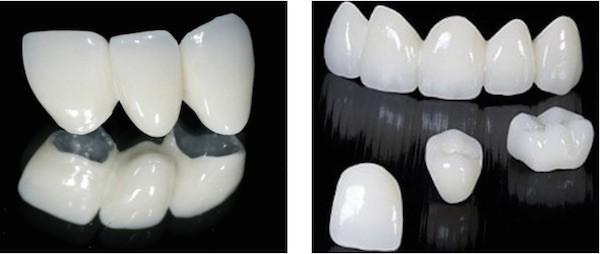 implante dental coronas