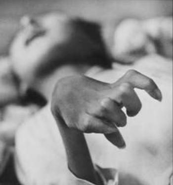 W. Eugene Smith 1971 JAPÓN. Minamata. La mano lisiada de Iwazo FUNABA, víctima de la enfermedad.