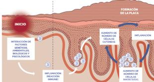 Identificada la molécula clave en el desarrollo de la psoriasis