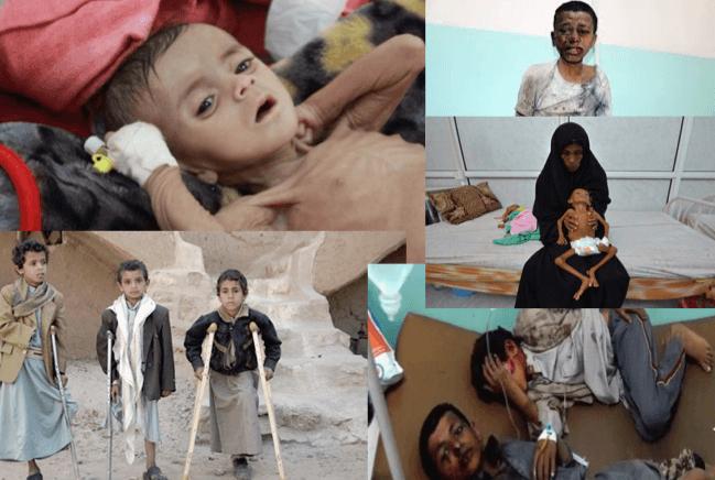 Niños del Yemen