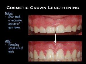 Cosmetic crown lengthening