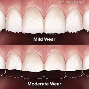 Mild tooth wear vs moderate tooth wear