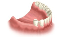 In this case, when replacing three teeth in the far back of the mouth, a fixed bridge anchored to dental implants is the only fixed alternative. Traditional dentures can't offer the same stability or function.