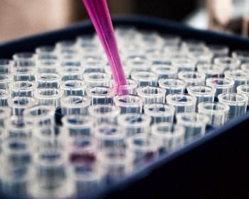 https://periscopiofiscalylegal.pwc.es/covid-19-medidas-aprobadas-por-el-consejo-de-ministros-y-por-sanidad-de-interes-para-la-industria-farmaceutica/