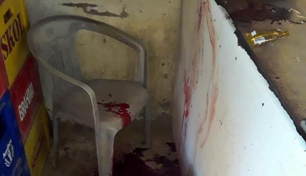 Gravatá: homem morto com tiro de espingarda na zona rural