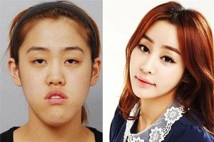 korean-girl-plastic-surgery-magic-01