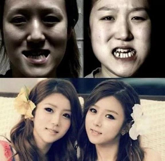 Korean Twins Plastic Surgery Persi In Corea