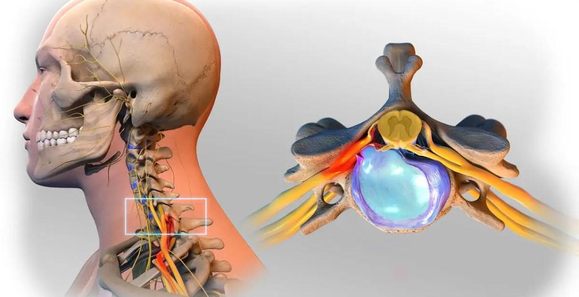Progresión y diagnóstico de hernias discales: especialista científico - Quiropráctico de El Paso