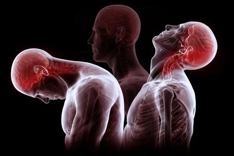 Studies Demonstrate Effectiveness of Chiropractic for Whiplash - El Paso Chiropractor