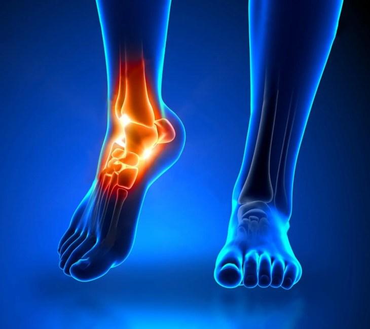 esguince y tratamiento de distensiones - lesiones en la clínica médica y quiropráctica el paso, tx.