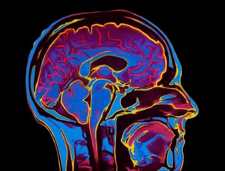 Fibromyalgia studies head el paso tx