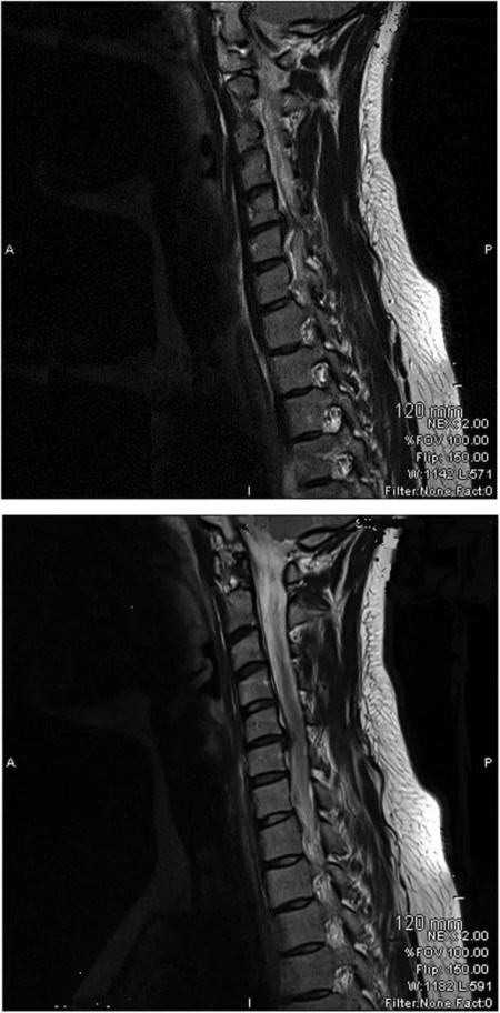 Figure 1 Loss of Cervical Spine Lordosis and Large Disc Herniation at C5 and C6 on MRI