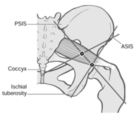 Figure 4 18 Bony Landmarks Used as Coordinates in Piriformis Image 2