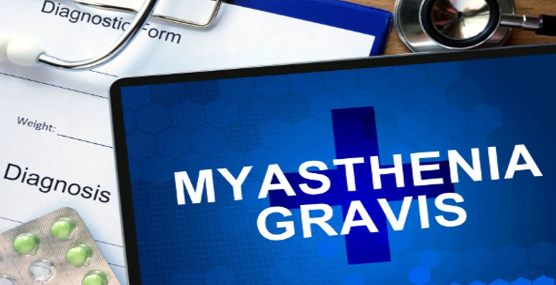 myasthenia gravis chiropractic therapy el paso tx.