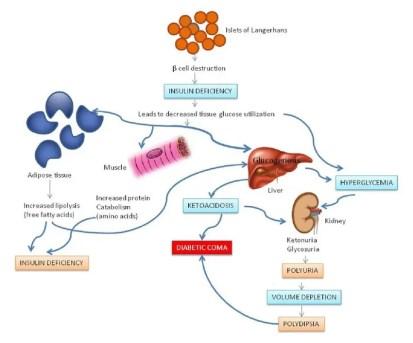 tipo 1.5 síntomas de diabetes autoinmune latente