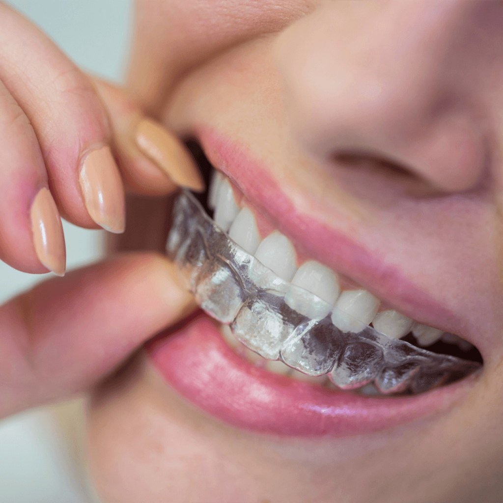External teeth cover