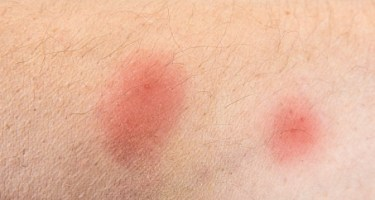What Do Flea Bites on Humans Look Like?
