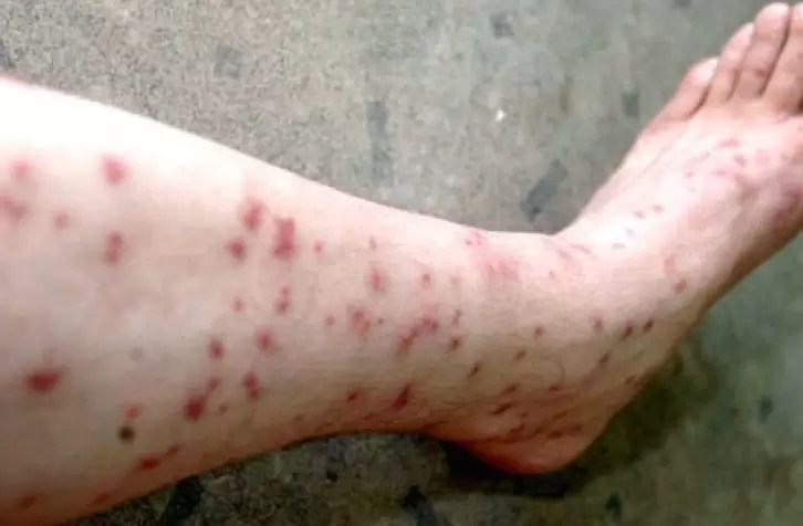 Flea Bites 101 Everything You Should Know About Flea Bites