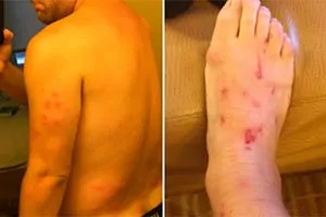 Bed bugs bites on your body