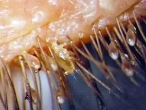 Eyelash mites form