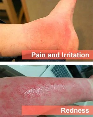 Redness and Irritation