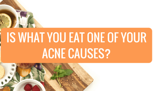 Is What You Eat One of Your Acne Causes?