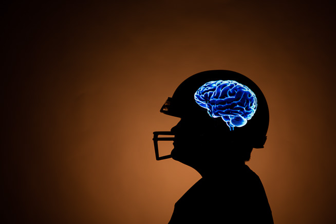 Creating a Football Concussion Photo Illustration