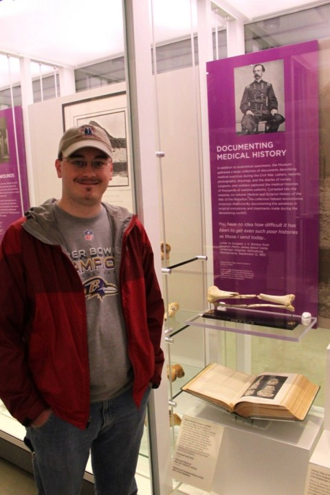 Posing with General Sickles' leg