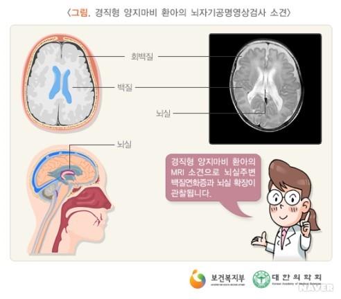 뇌 구성, 백질연화증 원인, 예방, 치료