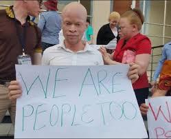 La tragèdia de les persones albines a l'Àfrica austral