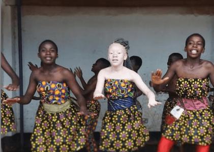 El albinismo en África