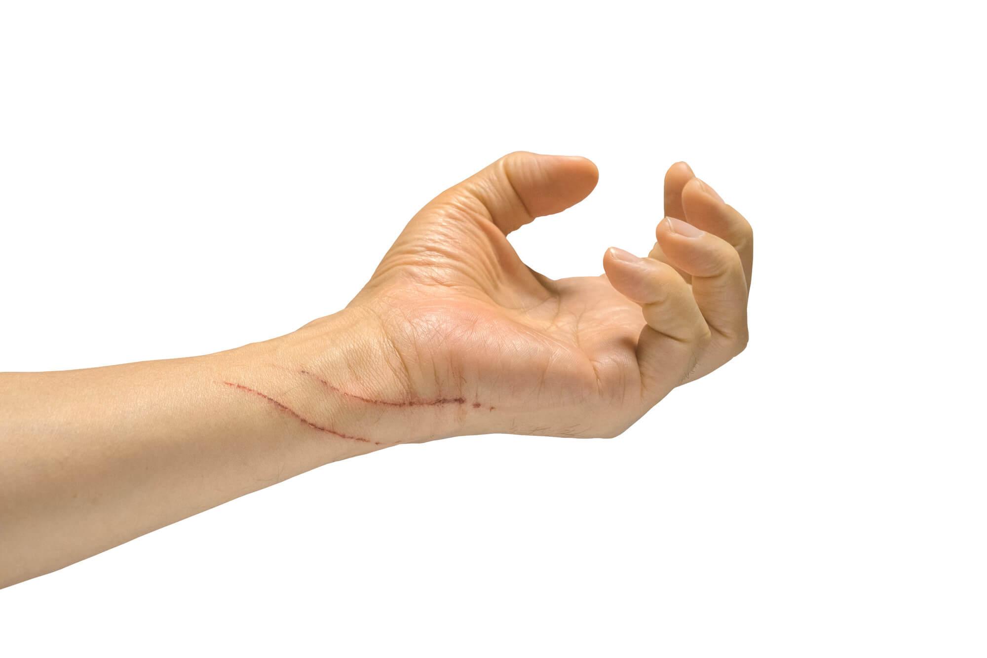 猫によるひっかき傷をできるだけ早く治す方法