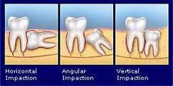 https://i1.wp.com/pghdentalclinic.com/wp-content/uploads/2011/10/pencabutan-gigi-bungsu-dengan-operasi-bedah-mulut-odontektomi.jpg
