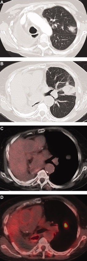 CT (A) demonstrates new left upper lobe mass representing new primary NSCLC in a patient who had a status post–right pneumonectomy for a prior NSCLC. CT (B) obtained in the same patient 2 weeks after radiofrequency ablation (RFA) demonstrates the postablation density in the left upper lobe. Fused PET/CT (C) obtained 4 months after RFA demonstrates mild [18F]FDG uptake at RFA site in the left upper lobe consistent with posttreatment inflammation. Fused PET/CT (D) obtained 7 months after RFA demonstrates new focal [18F]FDG uptake at post-RFA-opacity consistent with recurrent tumor.