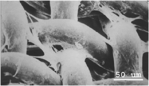 Figure 1. Scanning electron micrograph of the 3DFC patch
