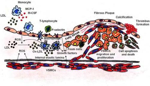 Involvement of VSMCs apoptosis in fibrous plaque rupture.