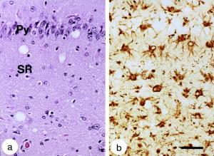 neuropathologic changes with RML scrapie prions