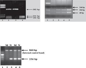 Molecular characterization of HbS and HbDPunjab by restriction enzyme digestion and of HbE by ARMS.
