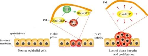 DLC1 is a tumor suppressor.