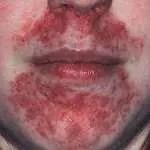 preoral dermatitis