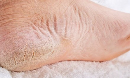 Cracked Heels Causes, Symptoms, Prevention,Treatments