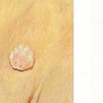 Warts caused by Human Papillomavirus (HPV)