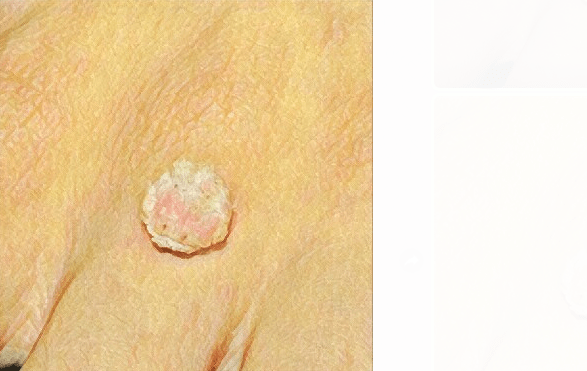 Warts caused by Human Papillomavirus (HPV)