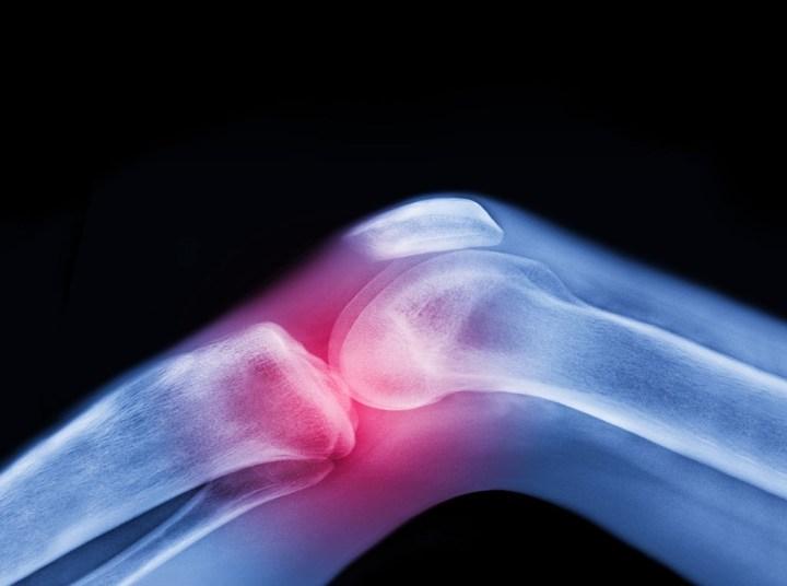 The Bone Density Solution Program