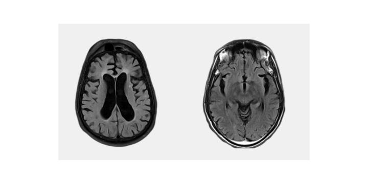 ProMind Complex supplement for brain