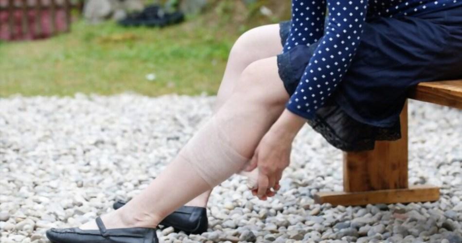 Best Cream For Leg Ulcers
