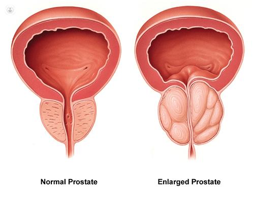 The Prostate Protocol by scott davis