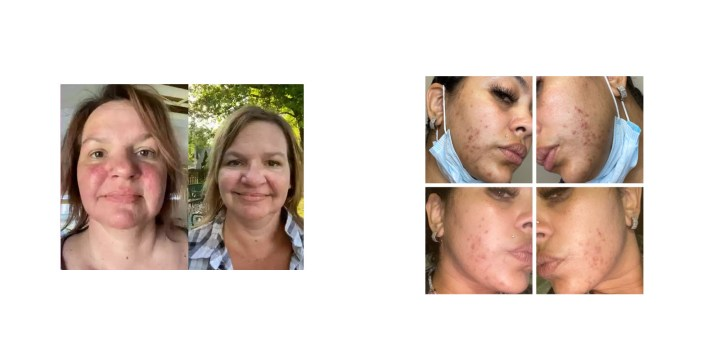Skinwin Cream before after results