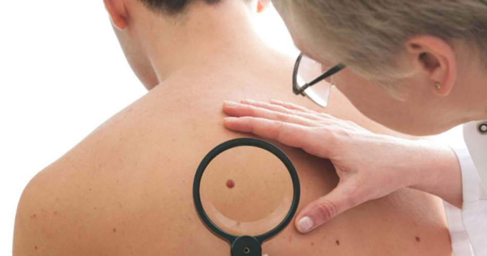 Stage Of Skin Cancer